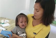 Cleft Lip patient