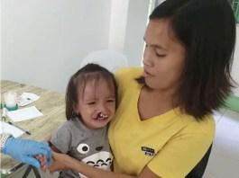 Cleft Lip patient