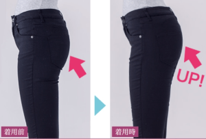 Hip before and after