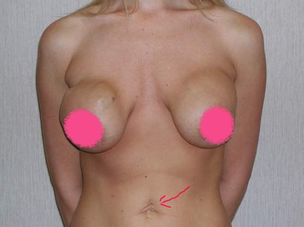 Sunken Chest Plastic Surgery Testy39xqi