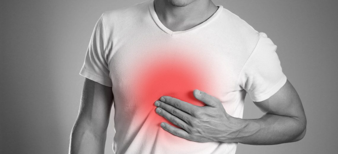 heartburn treatment