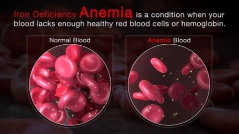 Iron Deficiency Symptoms Anemia