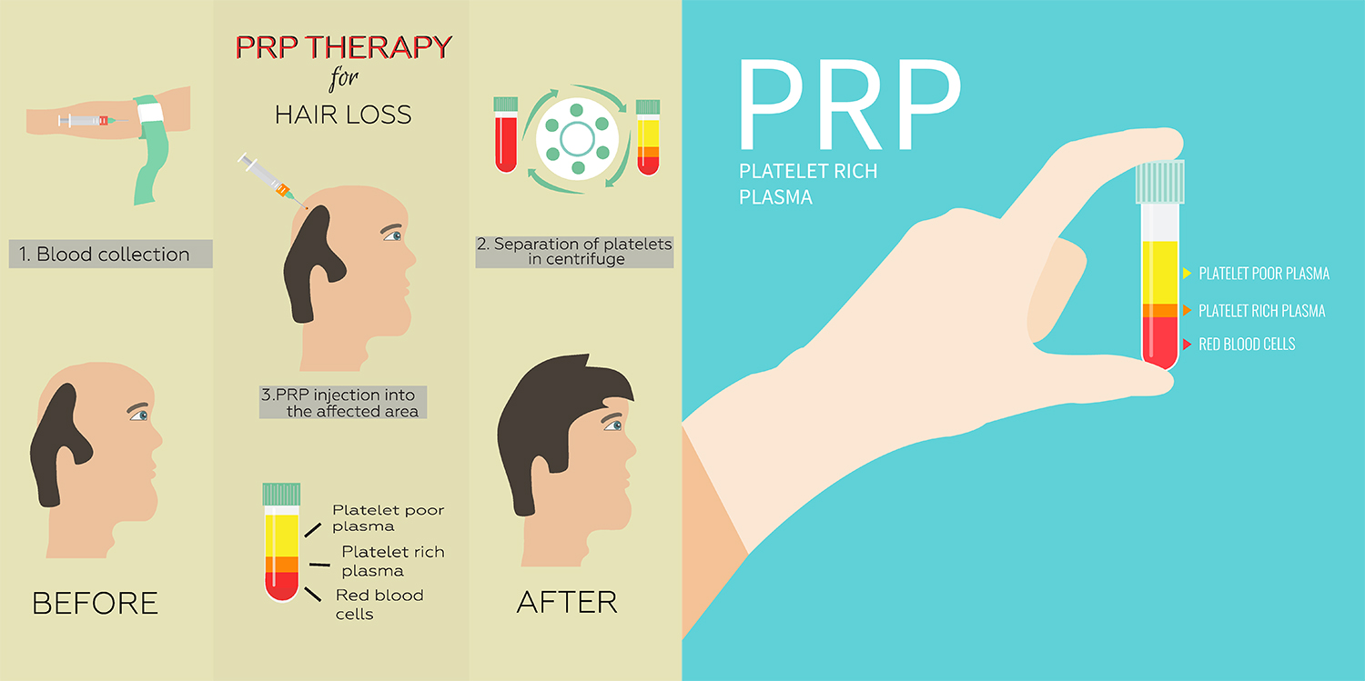 Using Your Own Cells to Repair Your Body – PRP & Prolotherapy