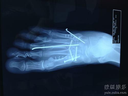 黃曉明曬腳趾骨術后X光照 編鋼釘對話顯樂觀-搜狐娛樂