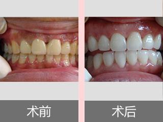 三招教你如何拯救滿口大黃牙,還你亮白牙齒!_搜狐健康_搜狐網