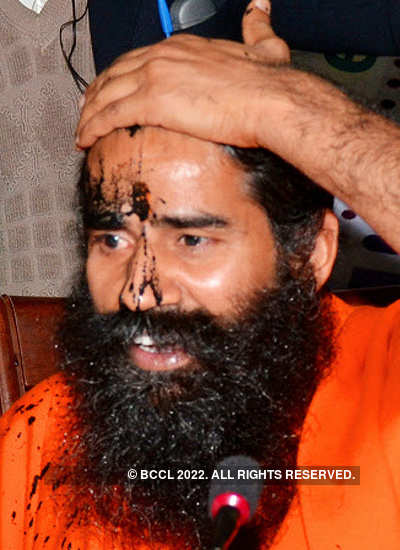 Baba Ramdev shows the black ink thrown by an offender