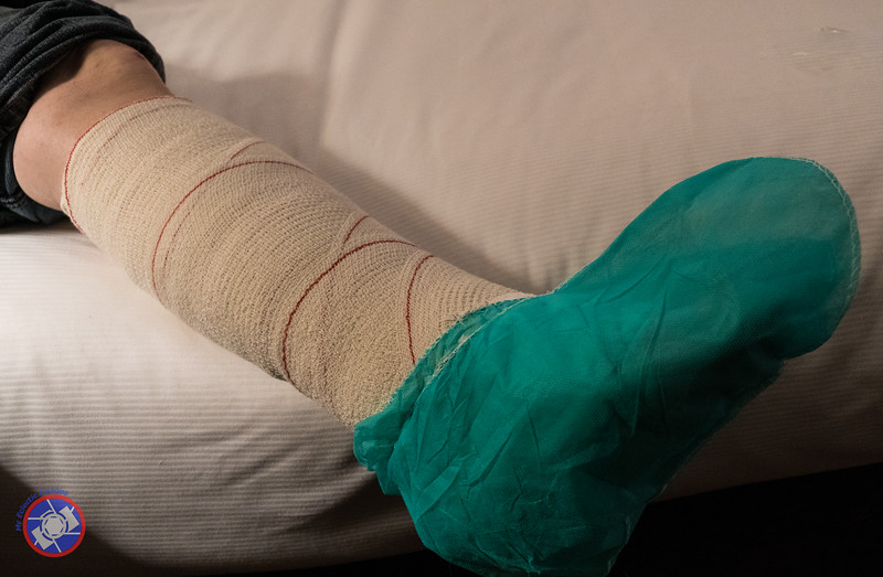 Here is What My Leg Looks Like After Clinic Girona had Finished Their Handiwork (©simon@myeclecticimages.com)