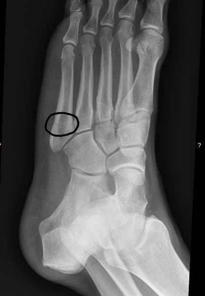 foot xray showing Jones fracture