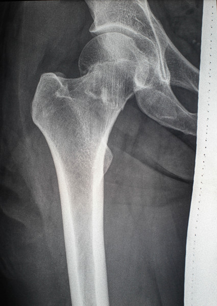 Femoral neck fracture. Anterior view. X-Ray
