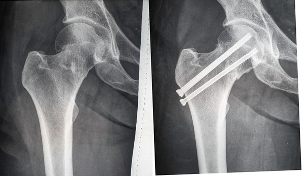Before and after comparison of my femoral neck fracture. X-Ray