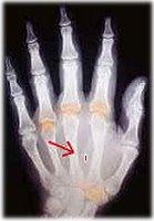Implante de chip de identificación en la mano