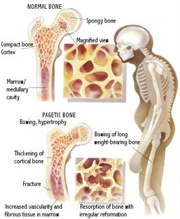 Paget's Disease of Bone