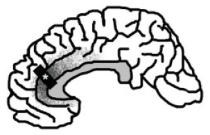 The Neurocritic Spindle Neurons and Frontotemporal Dementia