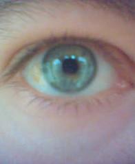 rechteroog(18)