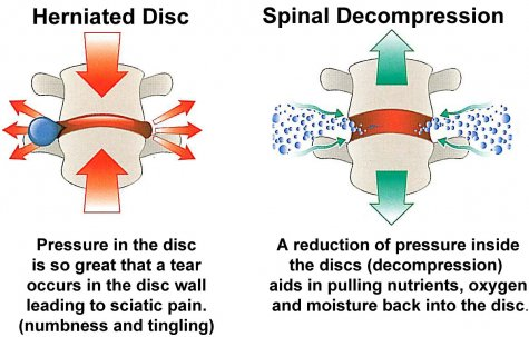 decompression-vacuum-effect