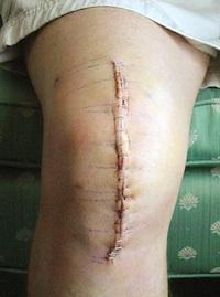 Total Knee Arthroplasty (TKA)