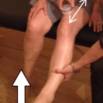 Patient is to actively flex and extend the knee while the cup is glided over the affected region of the quadriceps.