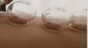 Dry Cupping