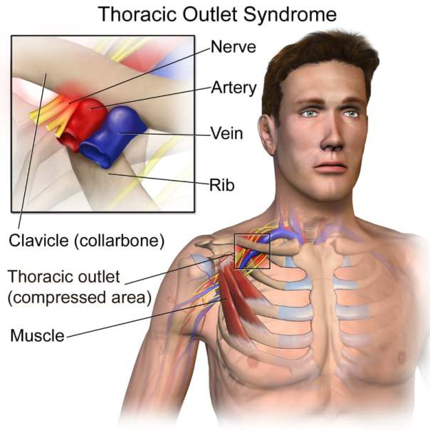 Thoracic Outlet Syndrome Diagram