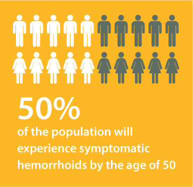 50% of the population will experience symptomatic hemorrhoids by the age of 50