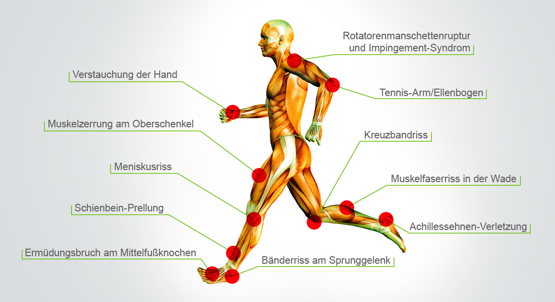 Atemberaubend Metatarsalkopf Anatomie Zeitgenössisch - Anatomie ...