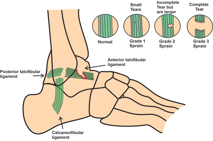 Anterior Drawer test Ankle: Detailed Overview | Physio-study