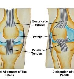 patella dislocations [ 1753 x 1240 Pixel ]
