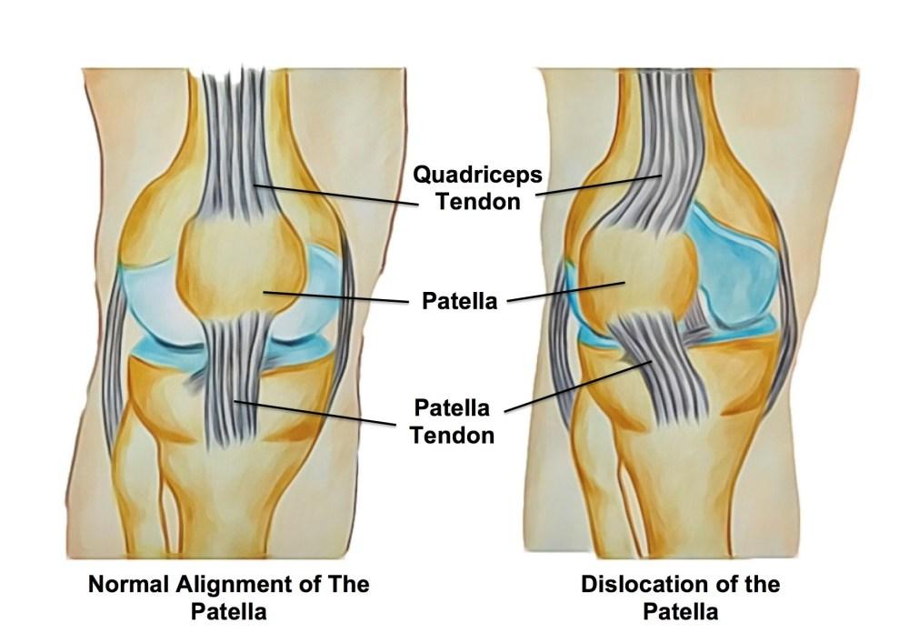 medium resolution of patella dislocations
