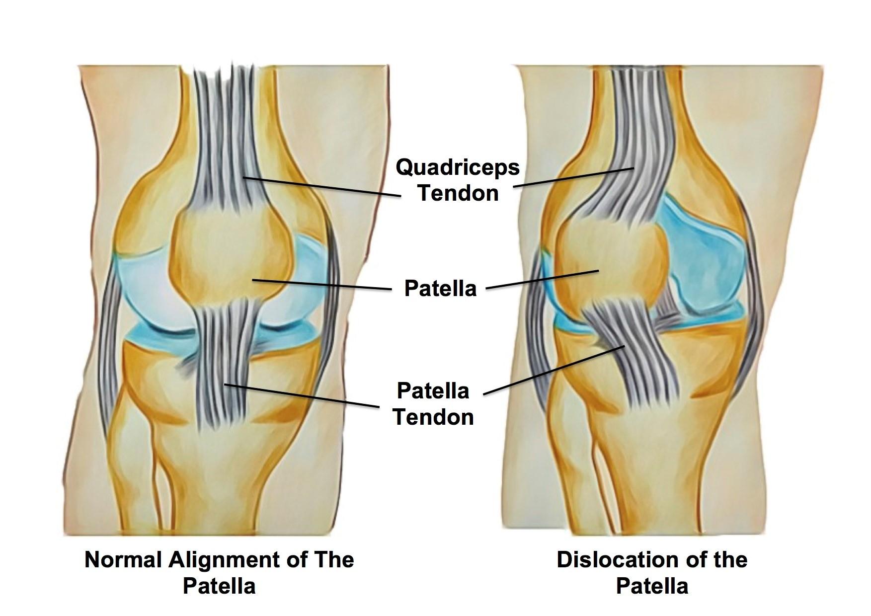 hight resolution of patella dislocations