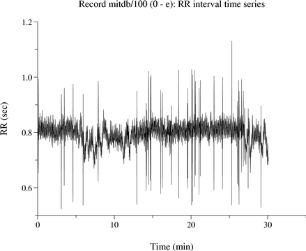 RR Intervals, Heart Rate, and HRV Howto