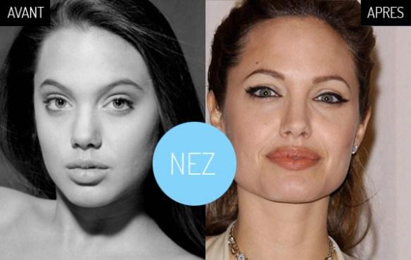 Angelina-Jolie-chirurgie-nez