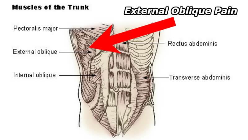 external oblique pain - Physiqz