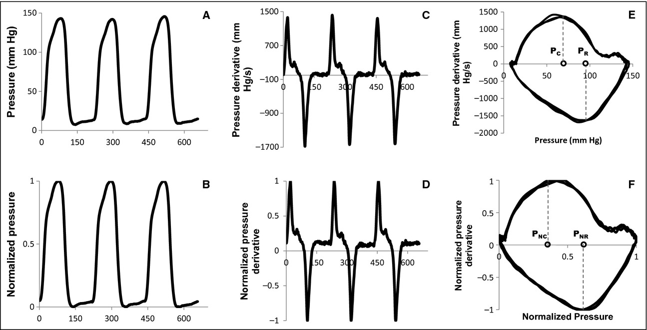 The quest for load‐independent left ventricular chamber
