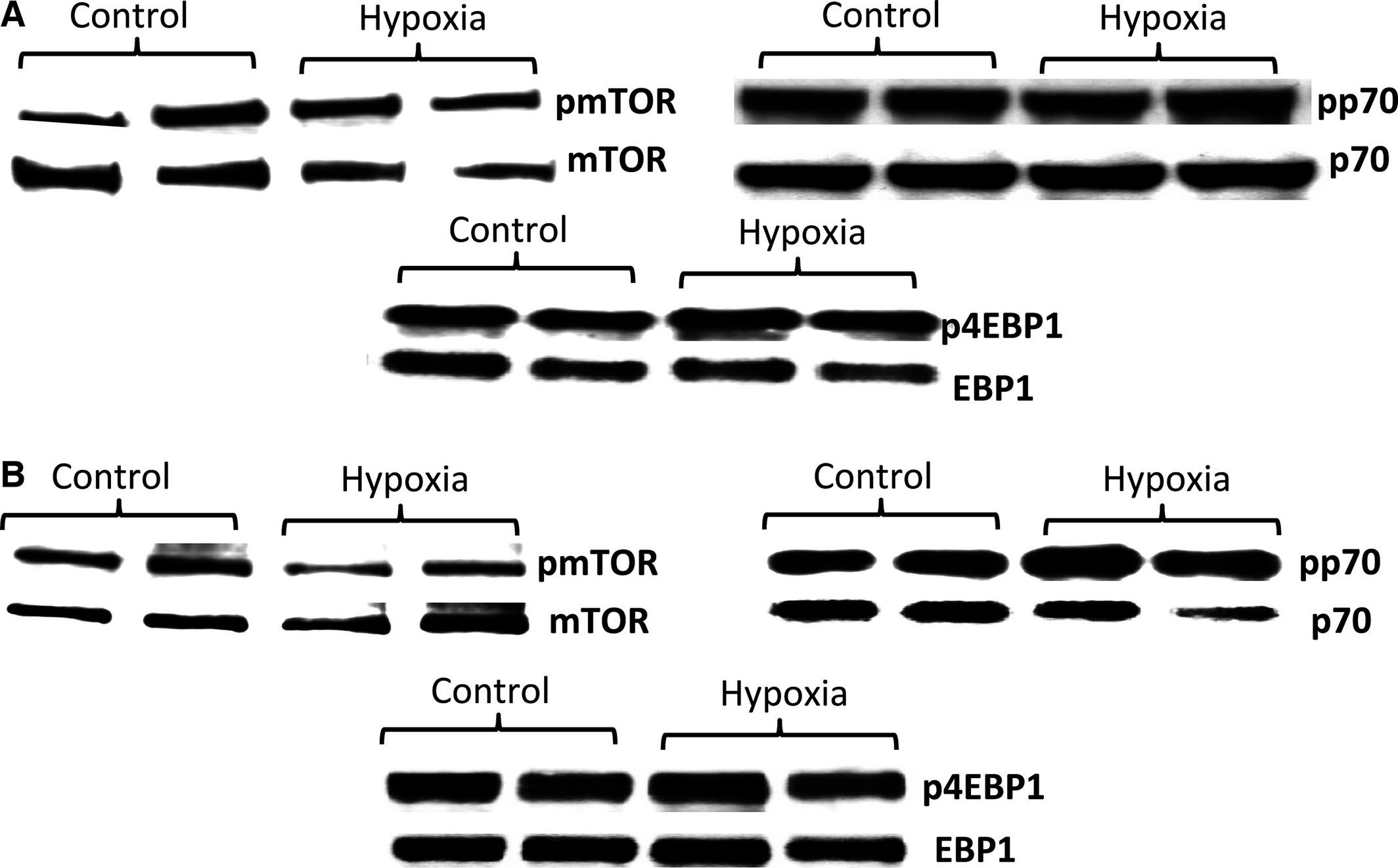 Hypoxia reduces placental mTOR activation in a hypoxia
