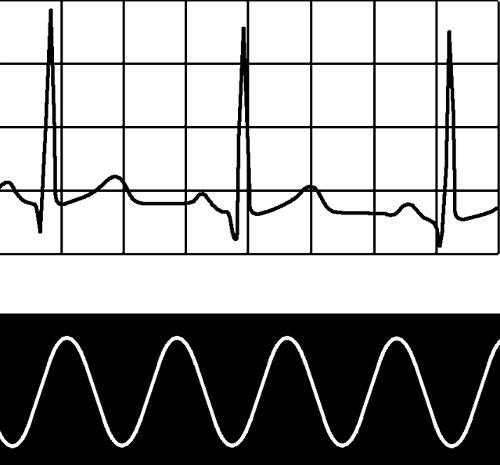 每分鐘心跳次數多少為正常 正常人一分鐘心跳數是多少