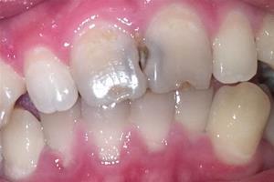 關於門牙蛀牙變黑怎麼辦的專題內容 - 色彩地帶