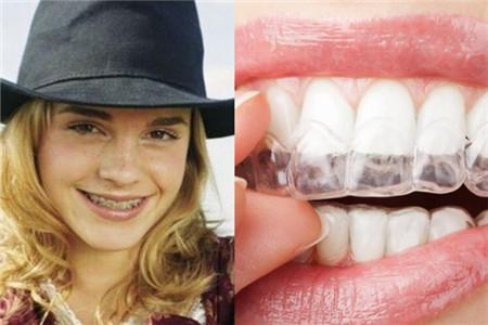 牙套種類有哪些 選擇適合自己的才重要 - 色彩地帶
