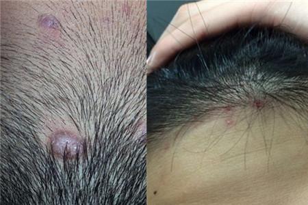 頭皮癬如何治療 有效的方法推薦 - 色彩地帶