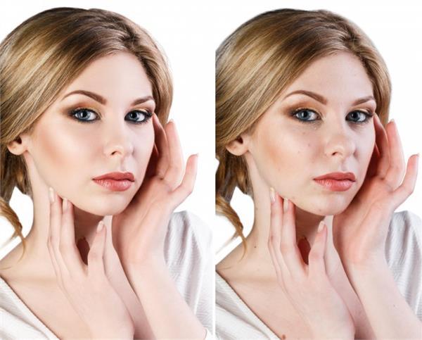 額頭上的粉刺怎麼去除小妙招 學會這幾招助你恢復美麗肌膚 - 色彩地帶