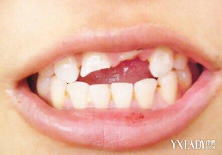 牙齒斷了怎麼補? 6個建議幫你快速修復牙齒 - 色彩地帶