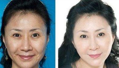 瀚宇老師教40歲女人的皮膚怎樣保養?40的女人也是一枝花 - 色彩地帶