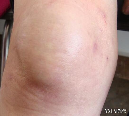 膝蓋腫脹怎麼消腫呢? 專家解讀怎樣有效消腫 - 色彩地帶