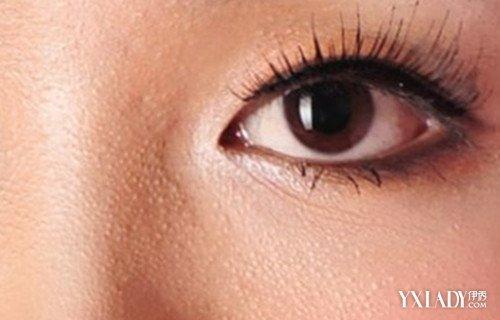 下眼瞼上長了個小白點是什麼? 簡單方法輕鬆消除脂肪粒 - 色彩地帶