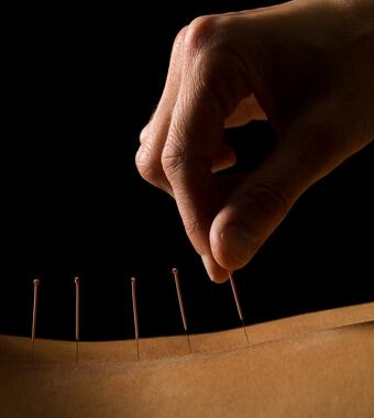 針灸減肥有效嗎 針灸減肥注意哪些誤區? - 天天健康
