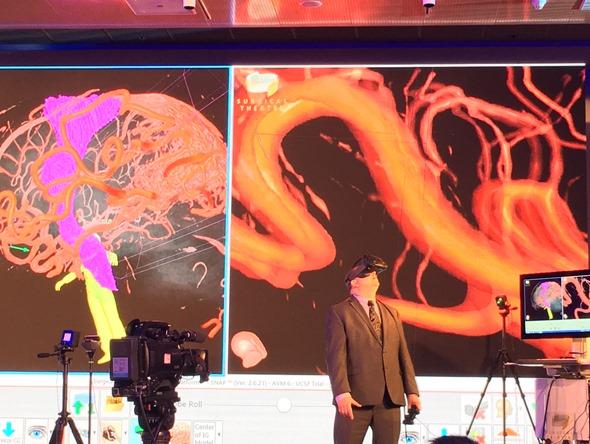 HTC VIVE 開發者峰會:虛擬實境在腦神經外科中的應用(Moty Avisar) IMG_0560