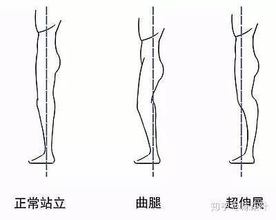 你不是腿粗,你可能只是劉亦菲款膝關節超伸!(膝超伸最全矯正方法) - 知乎