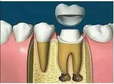 如果根管治療后堅決不做牙冠,會有影響嗎? - 知乎