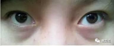 如何治療黑眼圈?史上最全去黑眼圈干貨 - 知乎