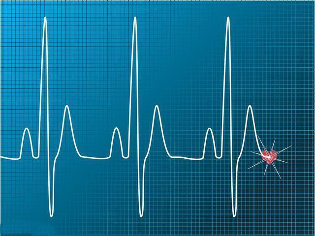 心跳快好還是心跳慢好? 心跳多少心臟壽命更長? 醫生告訴您答案 - 知乎
