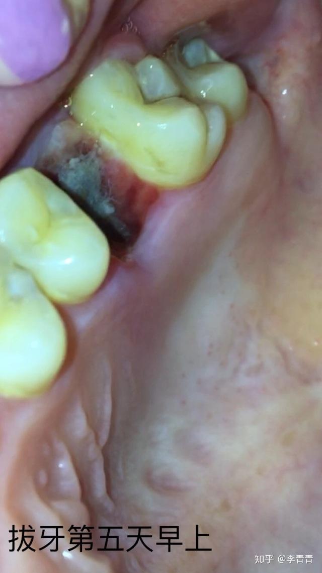 拔智齒后牙洞多久能愈合? - 知乎